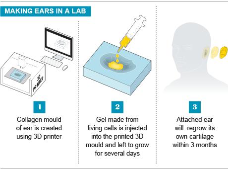 ایجاد یک گوش مصنوعی با استفاده از چاپ 3D و ژل های زندگی سلول